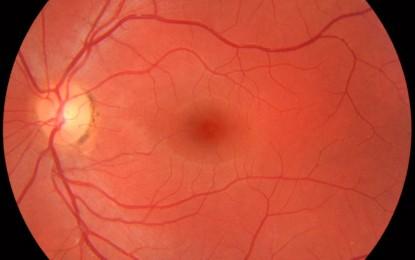 Degeneración macular: Cuando la vista no es igual que antes