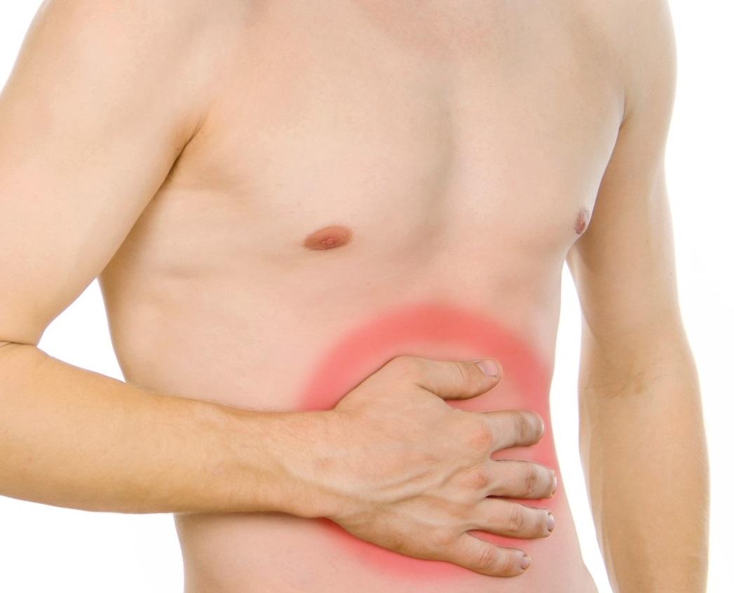 ¿Sos el candidato perfecto para padecer apendicitis?