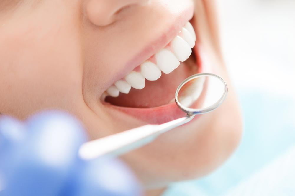 ¿Cada cuánto debe visitar al odontólogo?