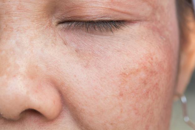 Psoriasis: ¿Cómo esta enfermedad afecta la calidad de vida de quienes la padecen?
