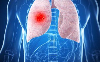 Todo lo que debe saber sobre el cáncer de pulmón