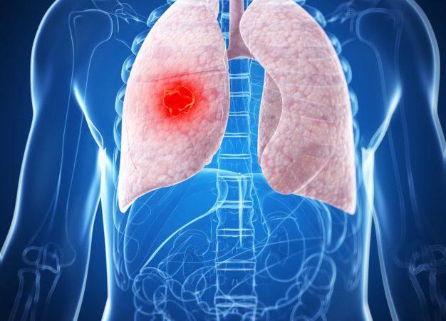 Cáncer de pulmón, una amenaza latente