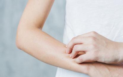 Así puede evitar el envejecimiento de la piel
