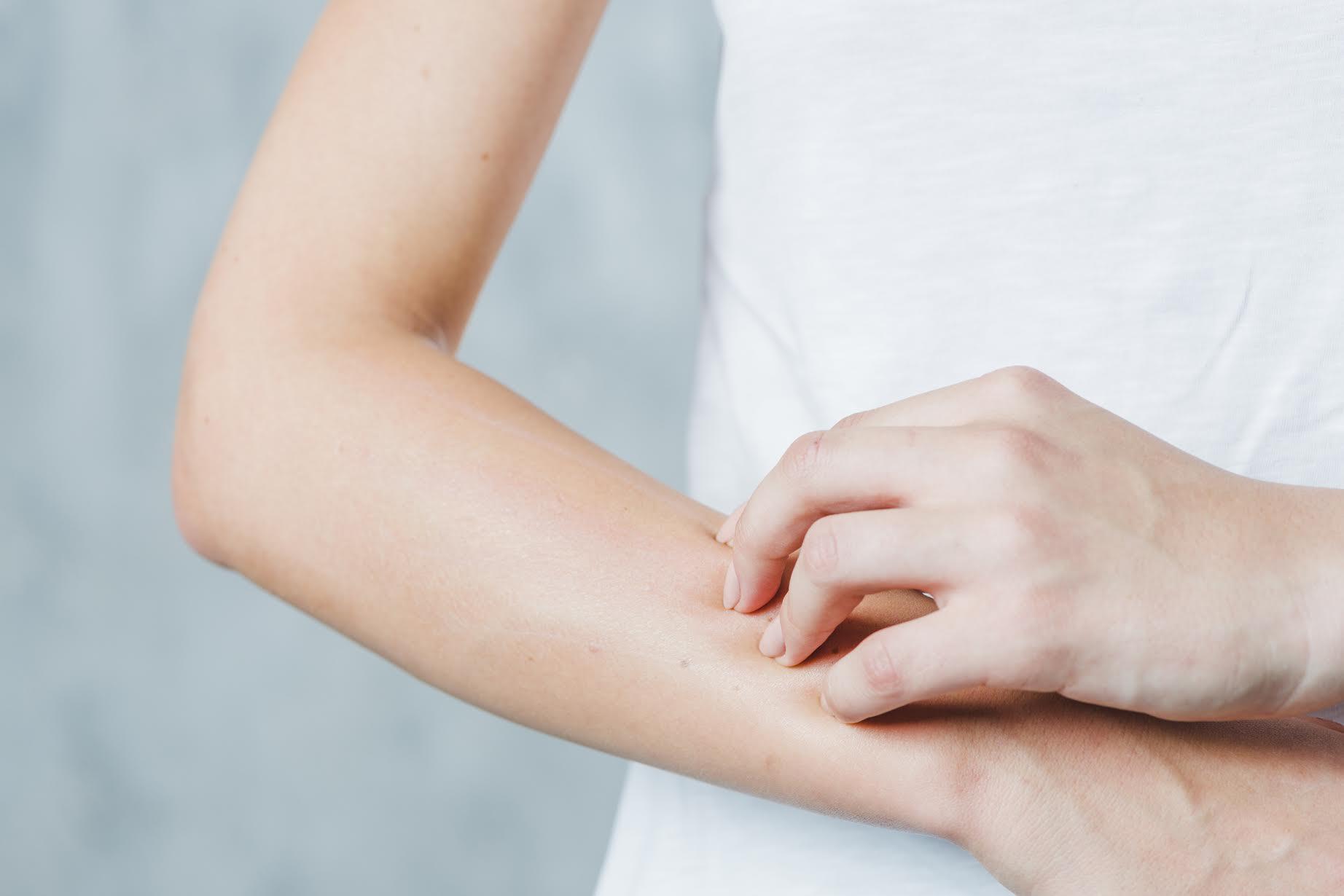 ¿Cómo puedes detectar síntomas de alerta en tu piel?