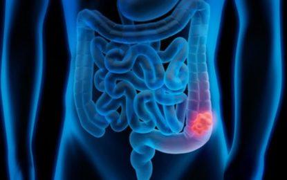Lo que debes saber sobre el cáncer colorrectal