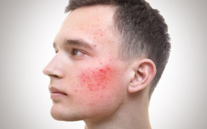 Preste atención a los cambios en su piel