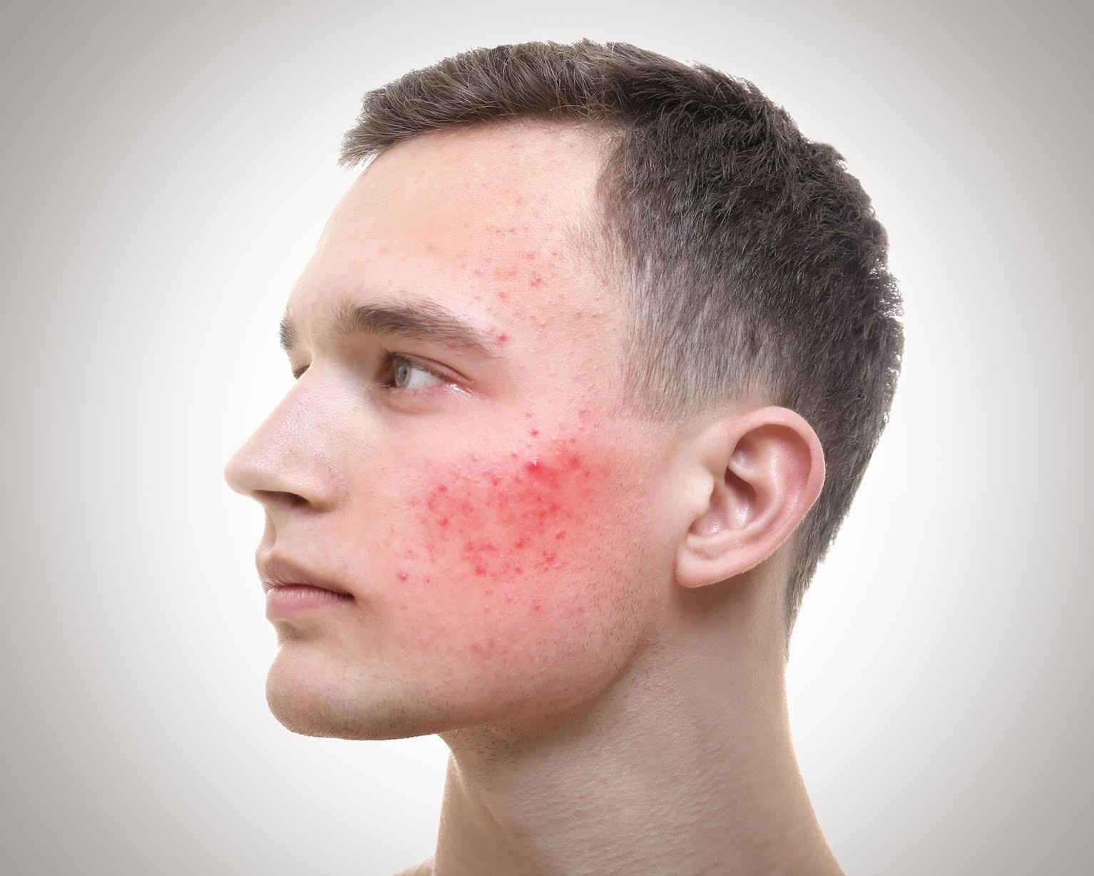Padecimientos de la piel pueden detonar cuadros de depresión y más