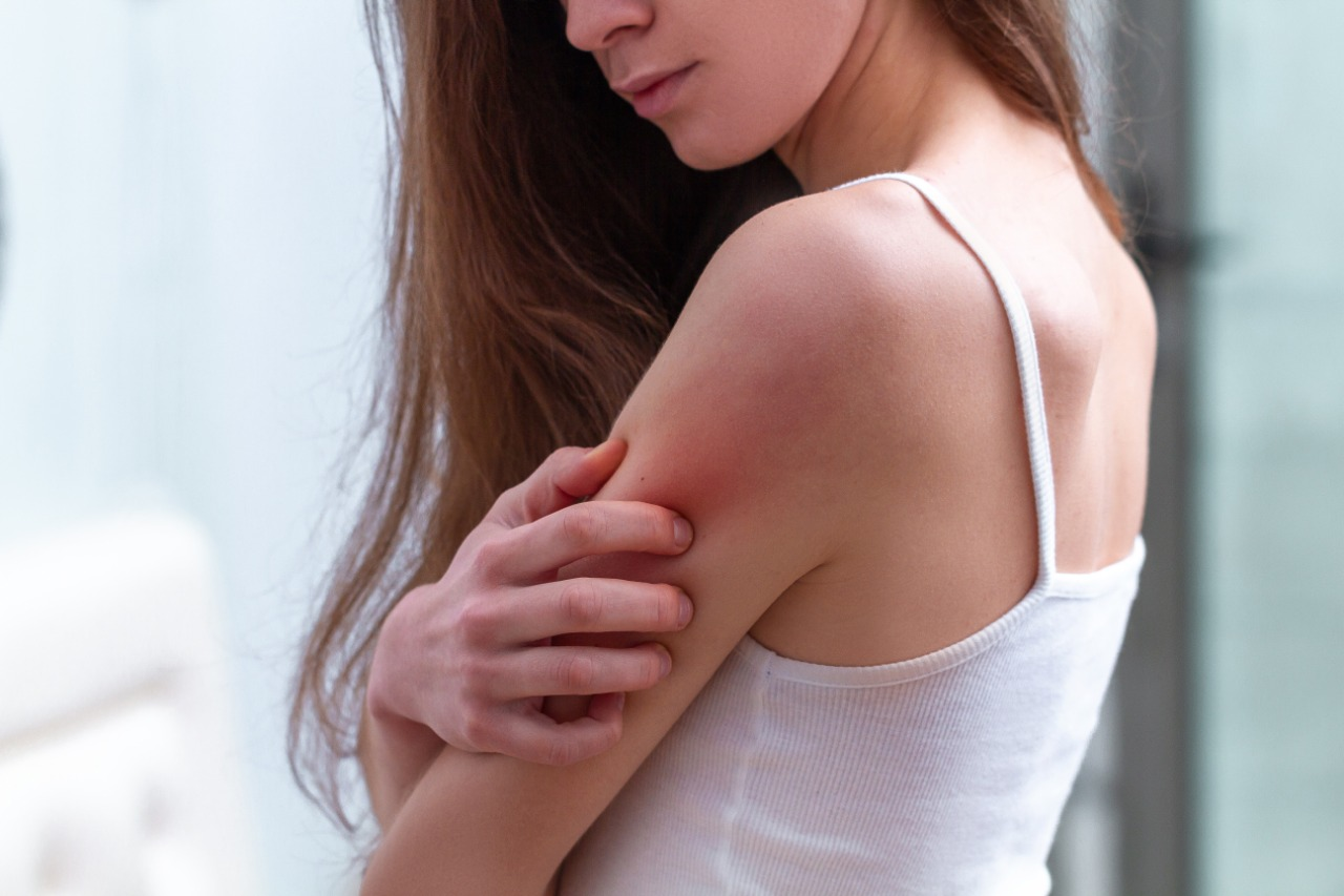 Pacientes con Dermatitis Atópica viven un reto extra ante la pandemia.