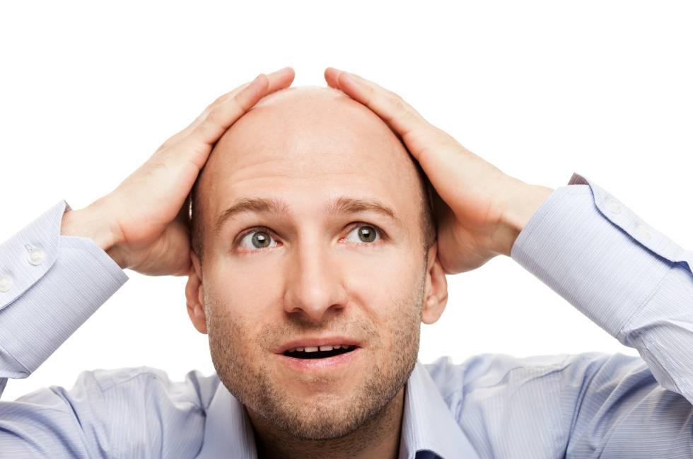 Mitos sobre la pérdida de cabello masculina