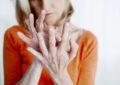 La artritis reumatoide es 2.5 veces más común en mujeres