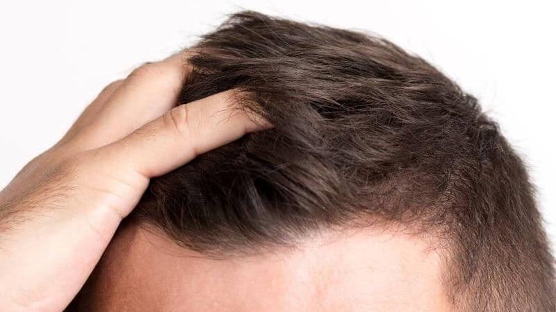 Un cabello poco sano y exceso de caída son los problemas que enfrentan los hombres por falta de cuido