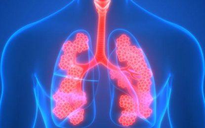Pacientes de EPOC avanzan exitosamente tras primer año de uso de novedosa válvula pulmonar
