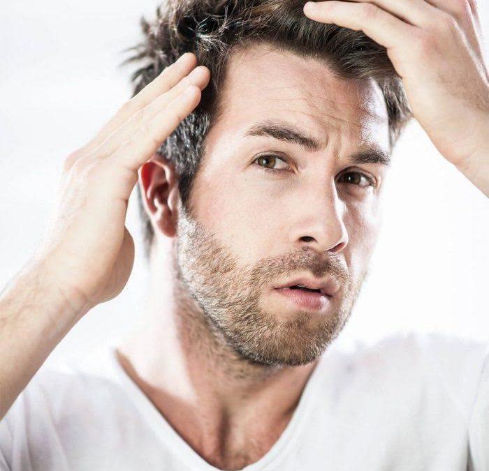 Los cuidados que requiere el cabello de hombre para evitar la grasa y la caída