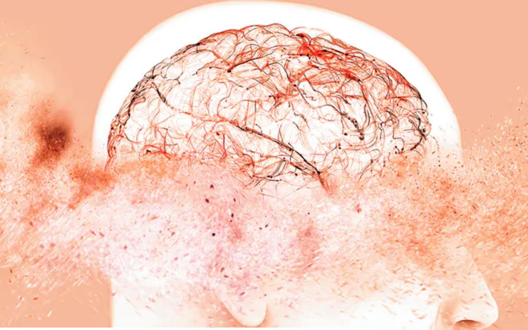8 claves para distinguir el envejecimiento normal del alzhéimer